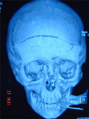 front-view-showing-fracture